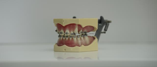 Tandarts voor orthodontie Medemblik